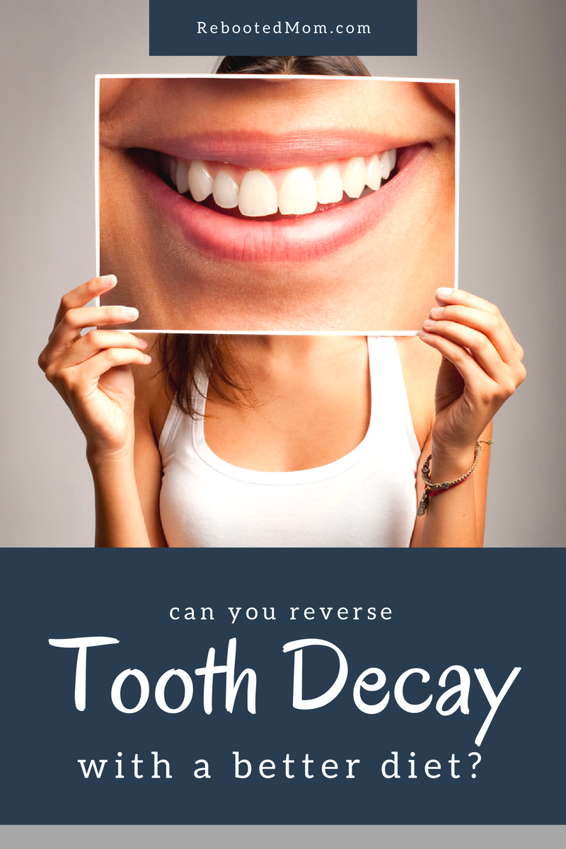 Can you Reverse Tooth Decay with a Better Diet?